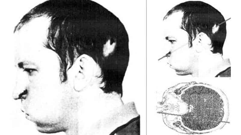 Anatoli Bugorski with proton beam through head.